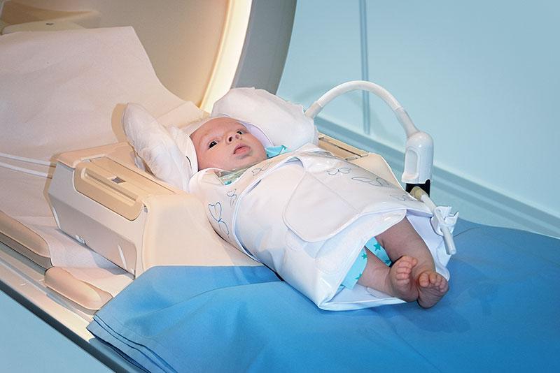 BabyFix Cocoon Lagerungshilfe für MRT Untersuchungen