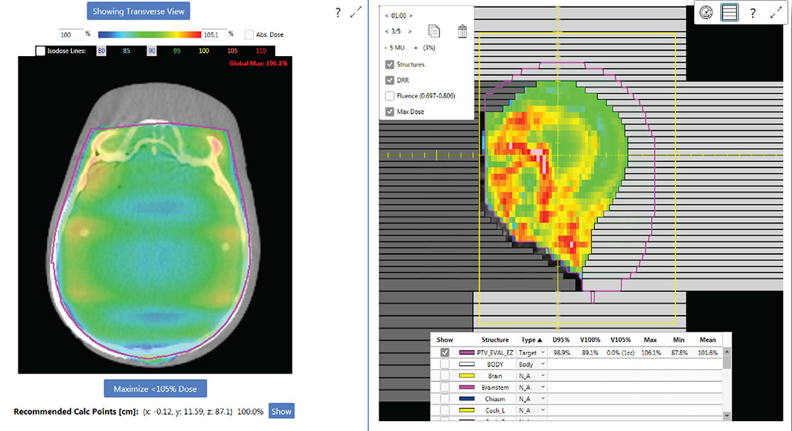 Whole Brain Field-in-Field