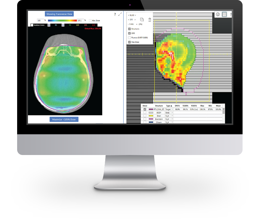 Quality Assurance Intelligent automation in radiation oncology